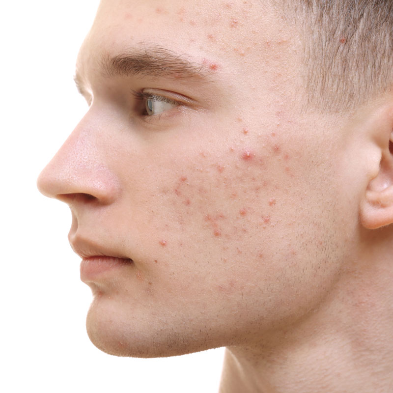 Man with red acne some white heads