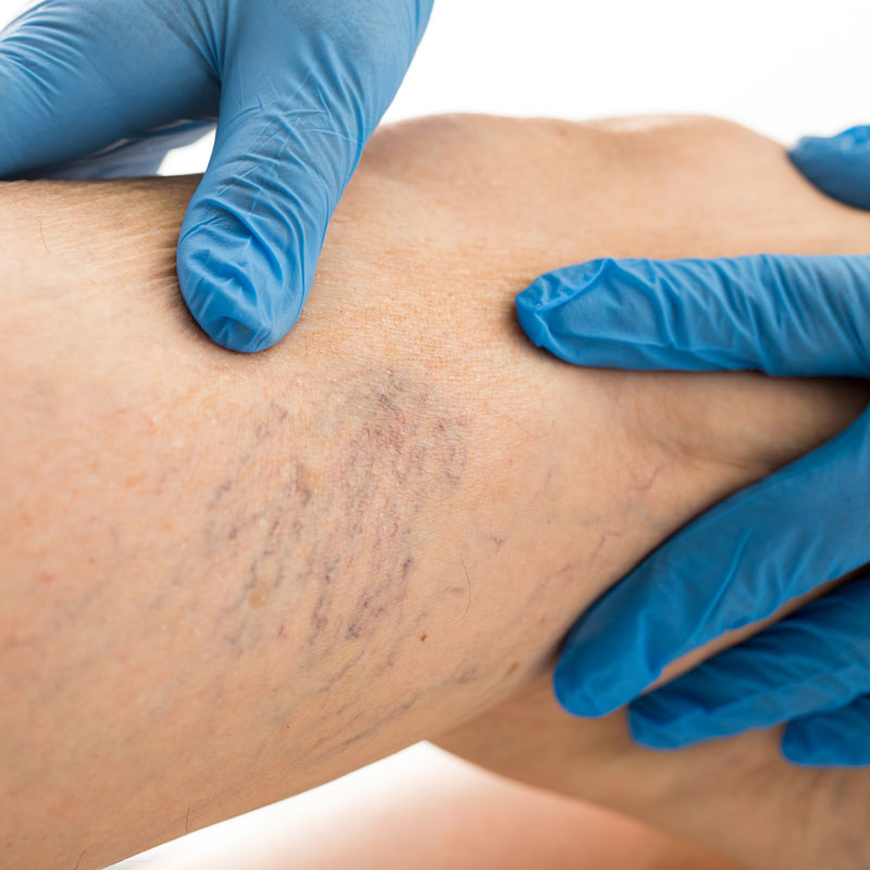 A forearm that reveals varicose veins, dark blue veins