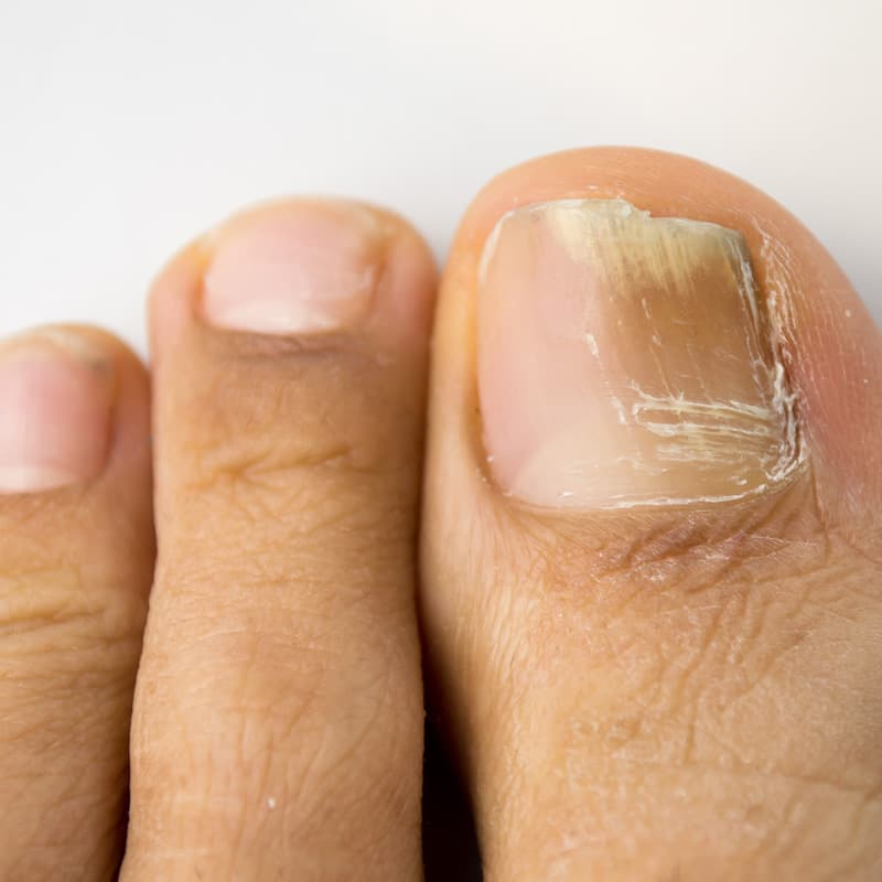 A patient with a toenail that appears cracked and diseased.