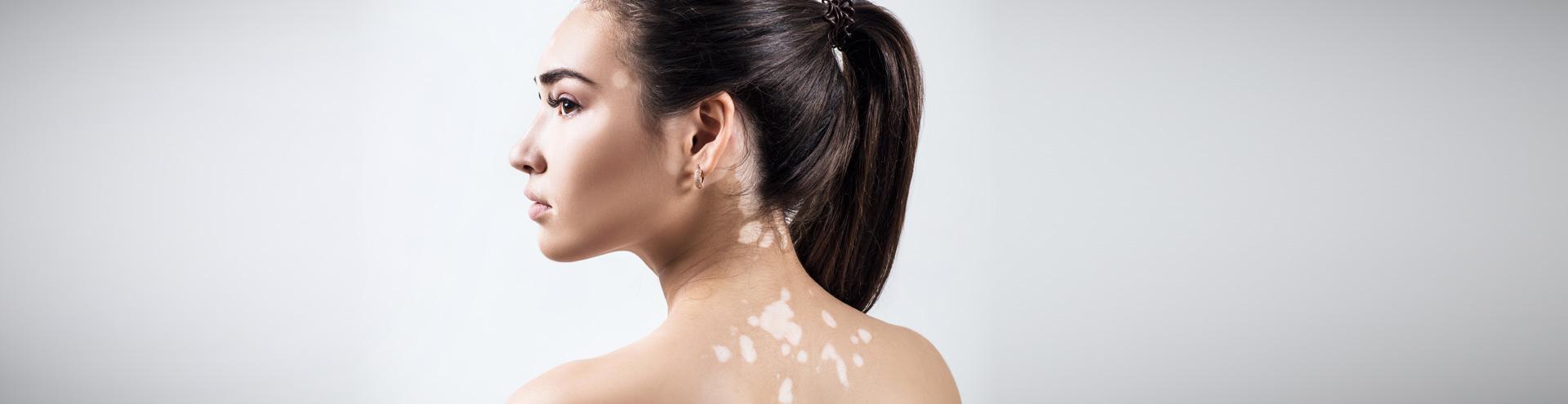 Vitiligo Mod Dermatology